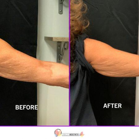 Before-After Website4